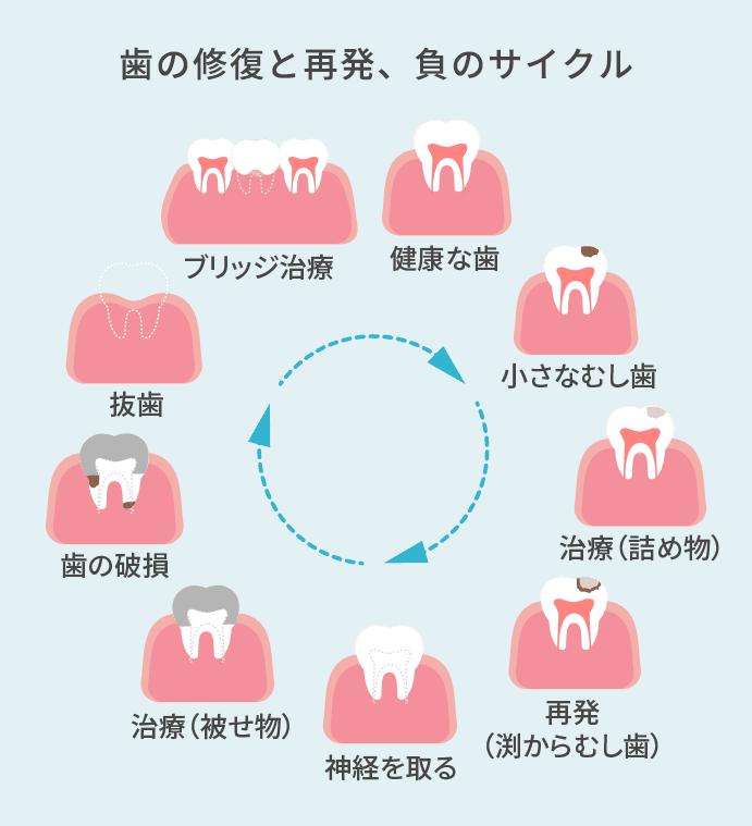 小さな虫歯→治療→再発→神経を取る→治療→歯の破損→抜歯→ブリッジ治療→健康な歯